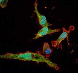 Linfocits converttits en macrofogs