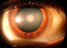 230px-Cataract_in_human_eye