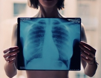 X-Ray-Ches
