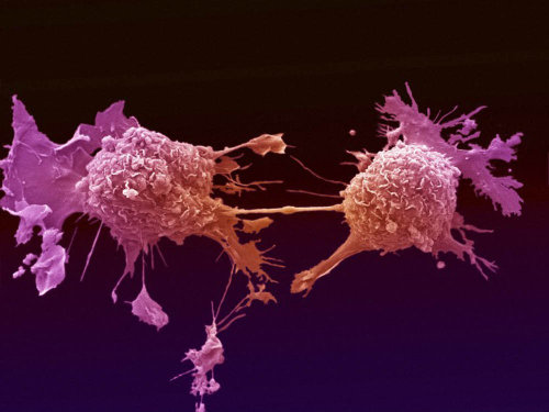 lung-cancer-cells