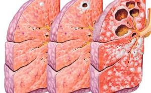 petittuberculosis