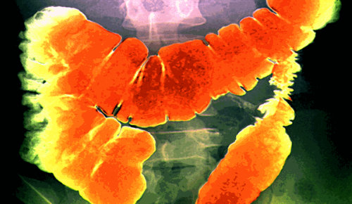 colon-cancer-slide-101_307904