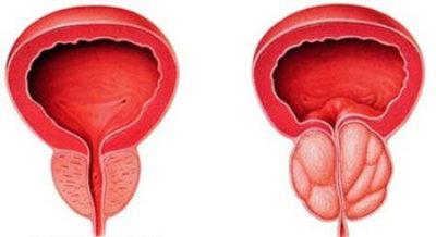 Cáncer-de-próstata-síntomas-en-la-orina