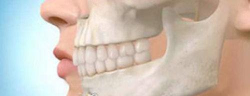 cirugia_maxilofacial-318x124