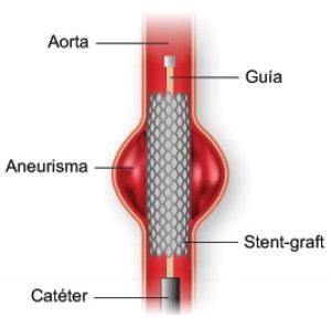 fig12_aneurysmgraft_sp