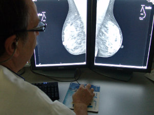 pp mamografia2