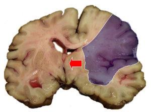 MCA-Stroke-Brain-Humn-2A
