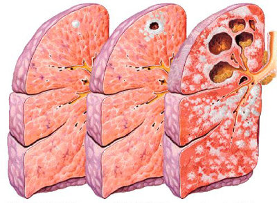 fig-2-humanorgans-orgtuberculosis