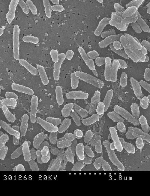 Micobacteriumbrumae