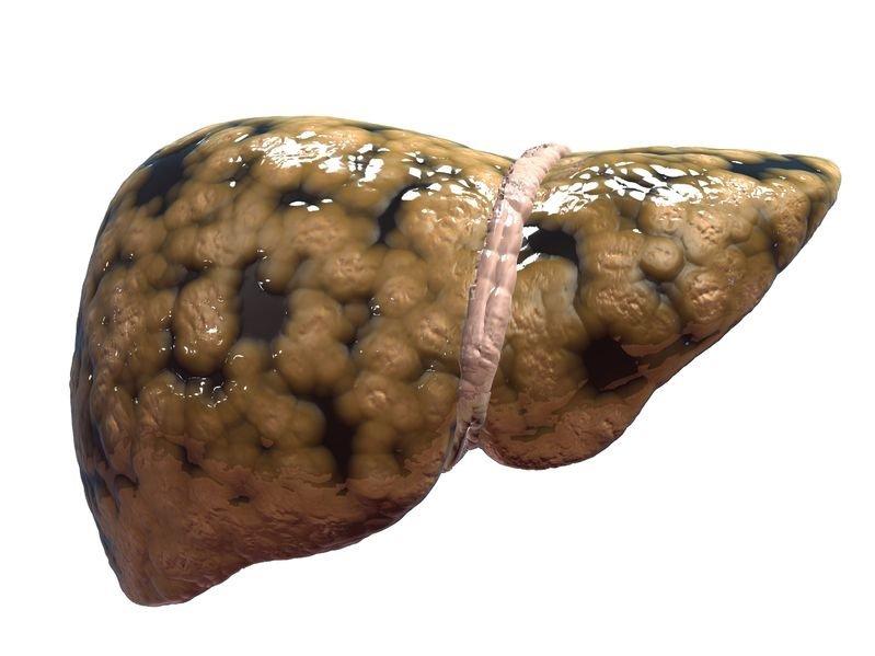 Hígado-graso1