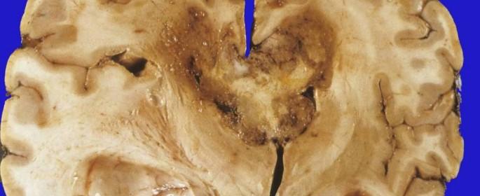 glioblastomanecrosiscentral
