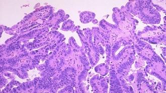 cancer_de_endometri
