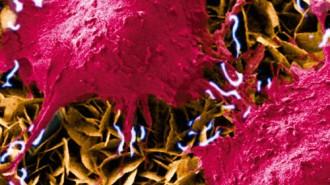 csic osteoblastos-sobre-nanogeneradores-600