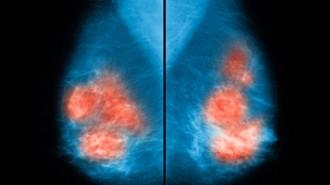MamografiaG