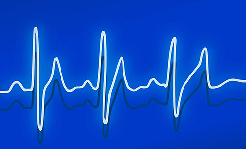 recerca ekg-heartbeat-drawing-web