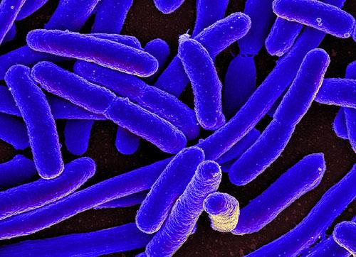 Bacteri_Ecoli_NIAID_CC-BY-2.0